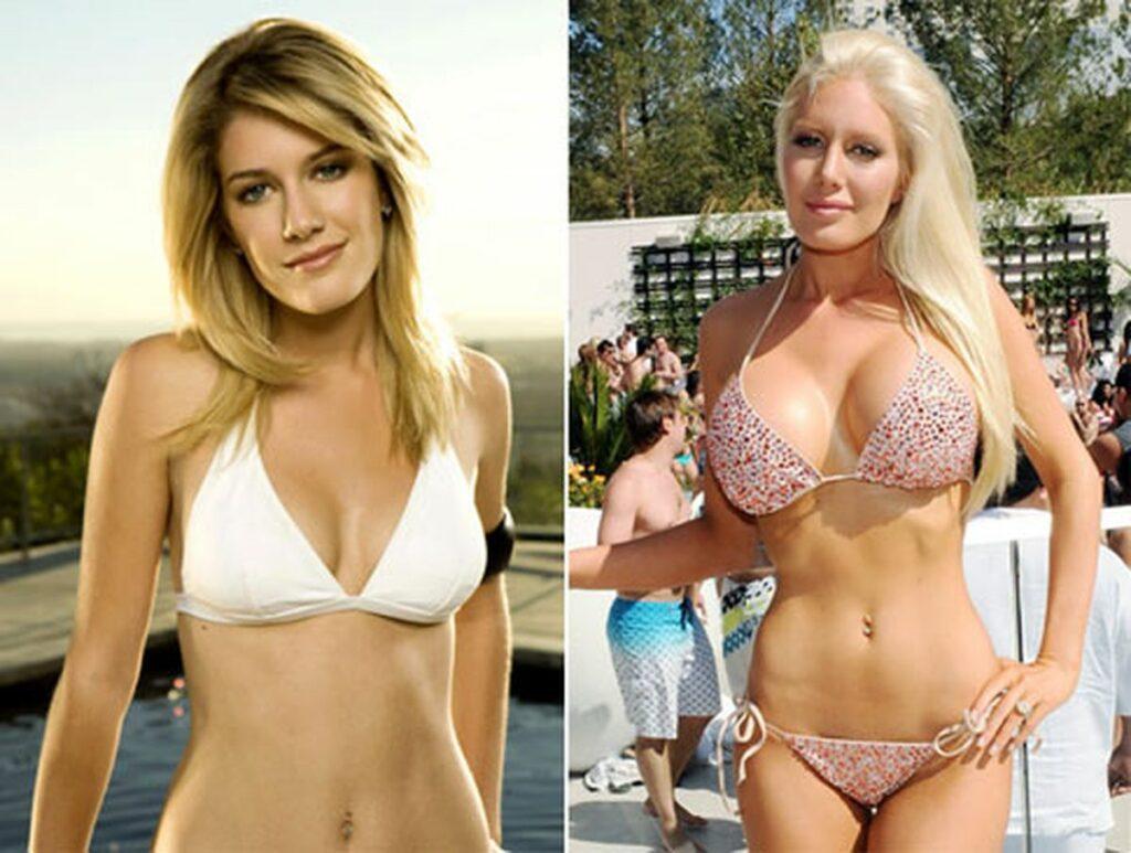 Heidi Montag, antes y después de sus operaciones de cirugía plástica.