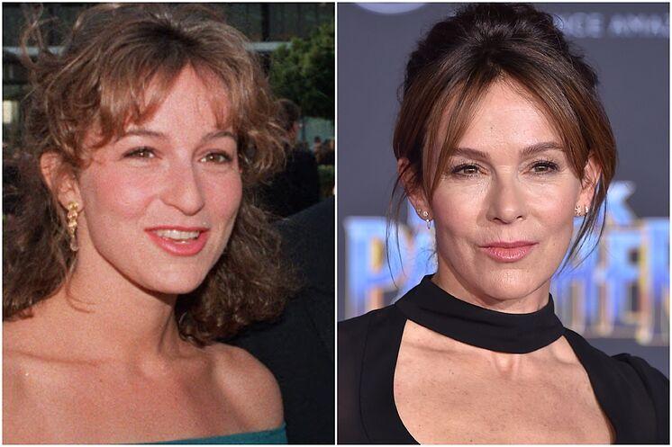 """Jennifer Grey, otro """"antes y después"""" de la cirugía plástica."""