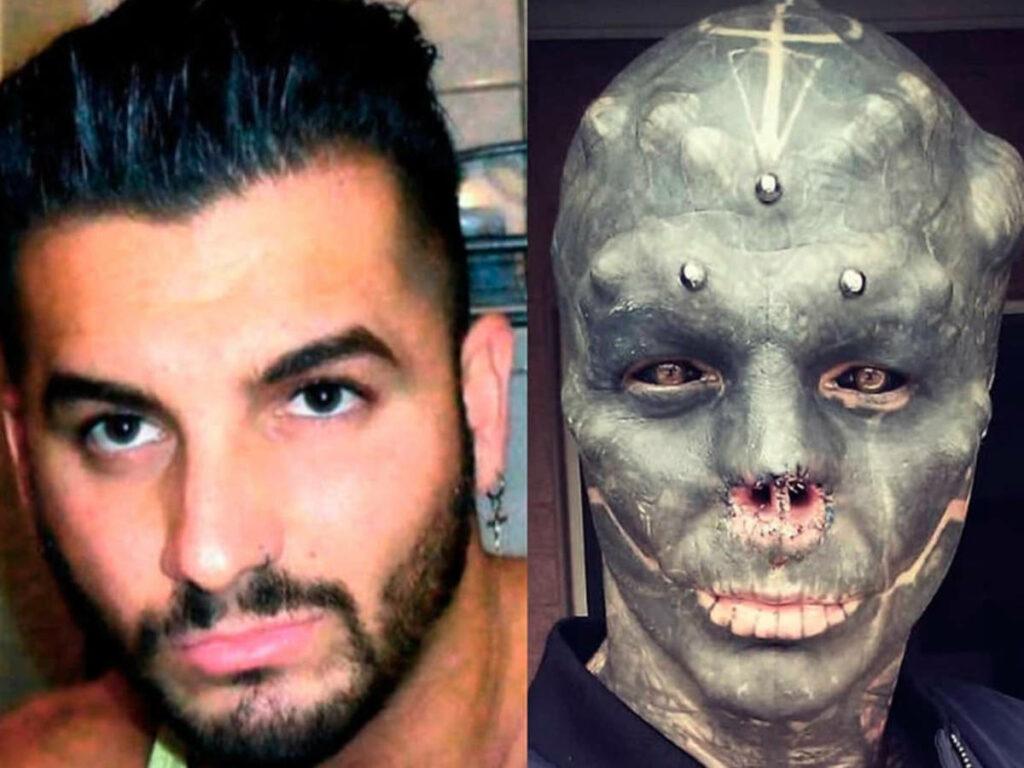 """""""The Black Alien"""": el antes y el después de la cirugía plástica."""