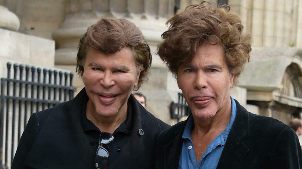 Los gemelos Bogdanoff, adictos a la cirugía plástica (y a las mentiras).