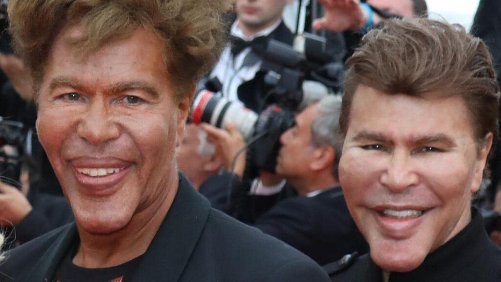 Los gemelos Bogdanoff: los gemelos se operan 1.000 veces.
