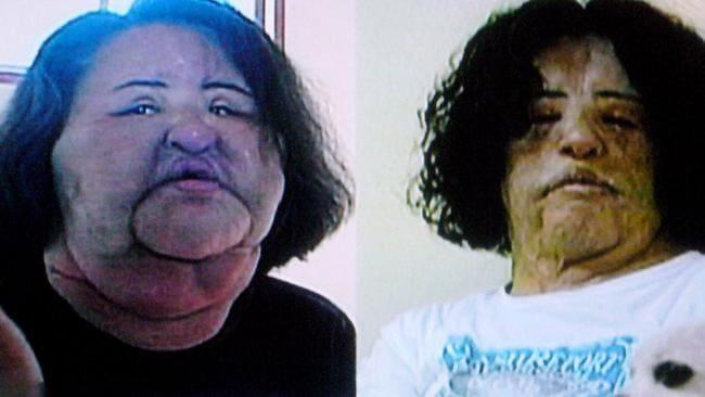 Hang Mioku, antes y después de las operaciones de reconstrucción.