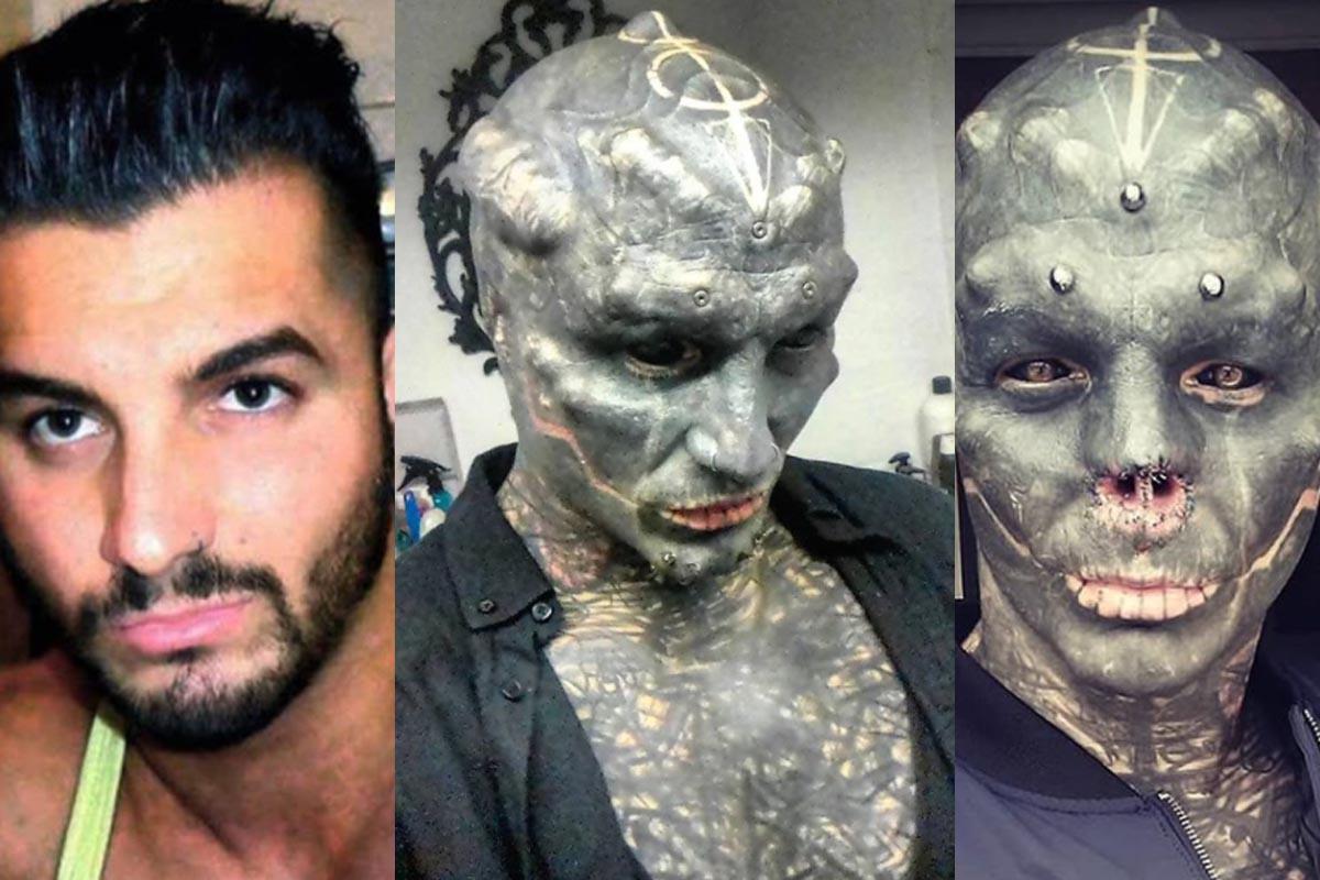 10 famosos que se destrozaron la cara con cirugia plastica